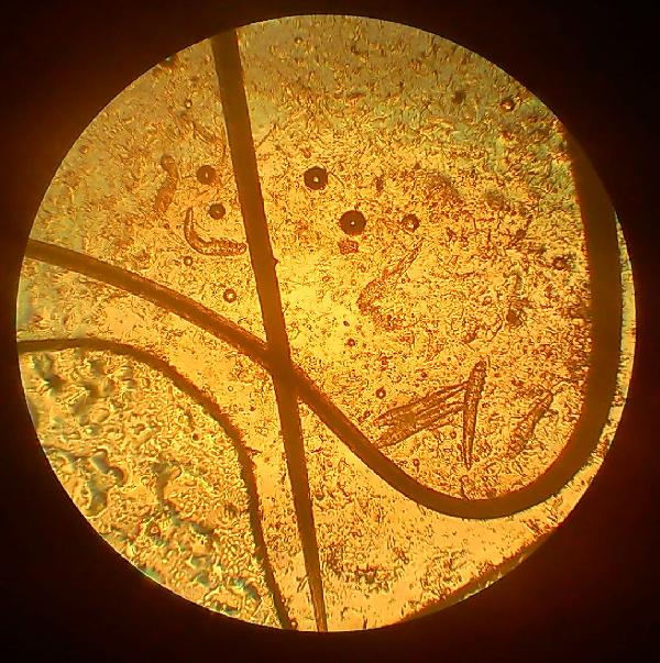 Demodex при микроскопии соскоба с кожи